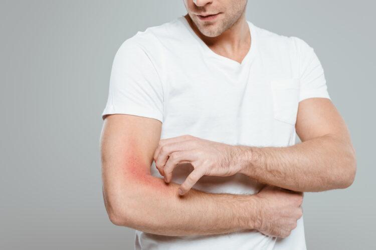 cbd for elbow pain